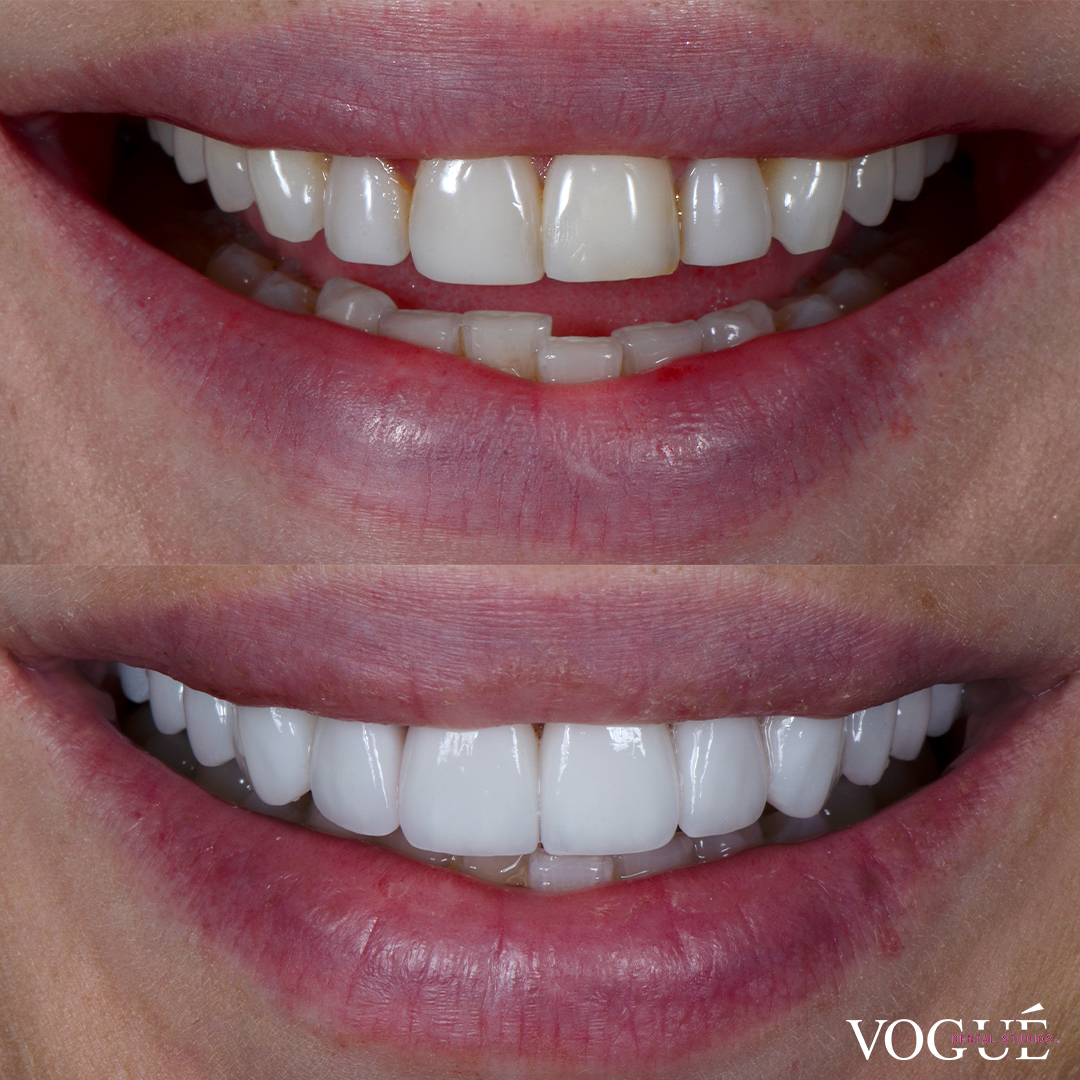 Before and after old composites with porcelain veneers at Vogue Dental Studios - front teeth view Sarah.