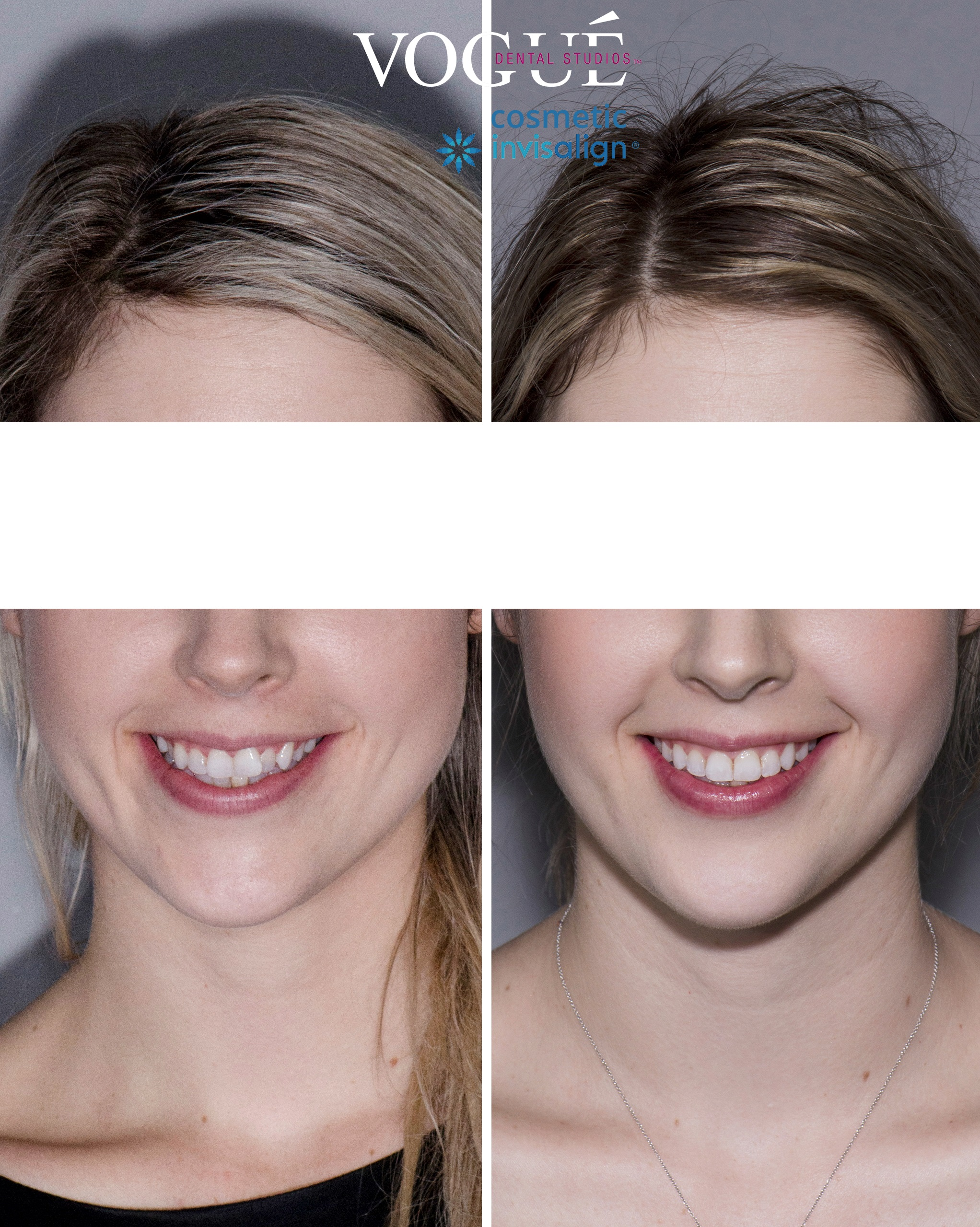 Before and after Invisalign Lite at Vogue Dental Studios - front face view.