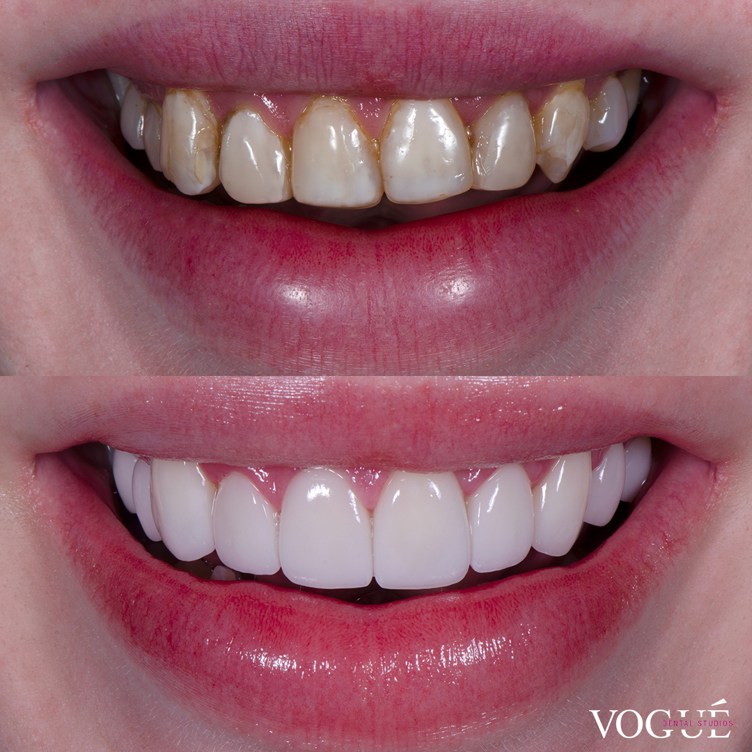 Before and after old composite veneers with porcelain veneers at Vogue Dental Studios - front teeth view Jack.