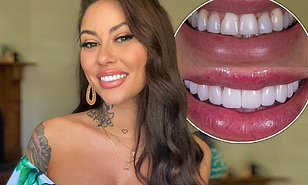 Jessica Brody shows off her new porcelain veneers after years of 'bullying'.