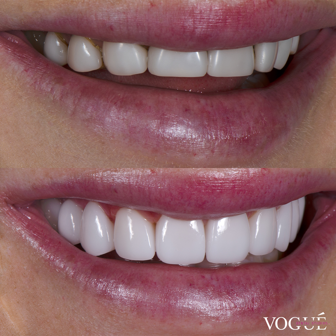 Before and after porcelain veneers smile makeover at Vogue Dental Studios - right teeth view Ines.