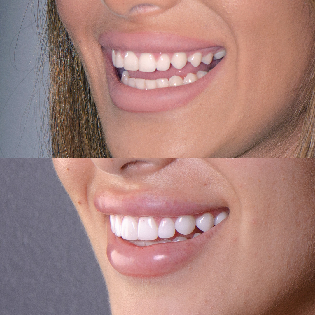 Christina Sikalias correcting uneven gum line with porcelain veneers at Vogue Dental Studios.
