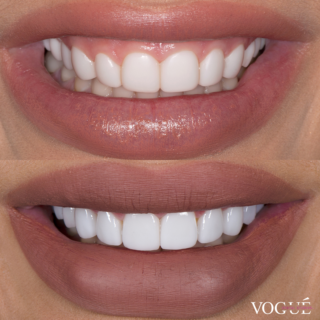 Before and after gum laser surgery in combination with porcelain veneers at Vogue Dental Studios - front teeth view Zia.