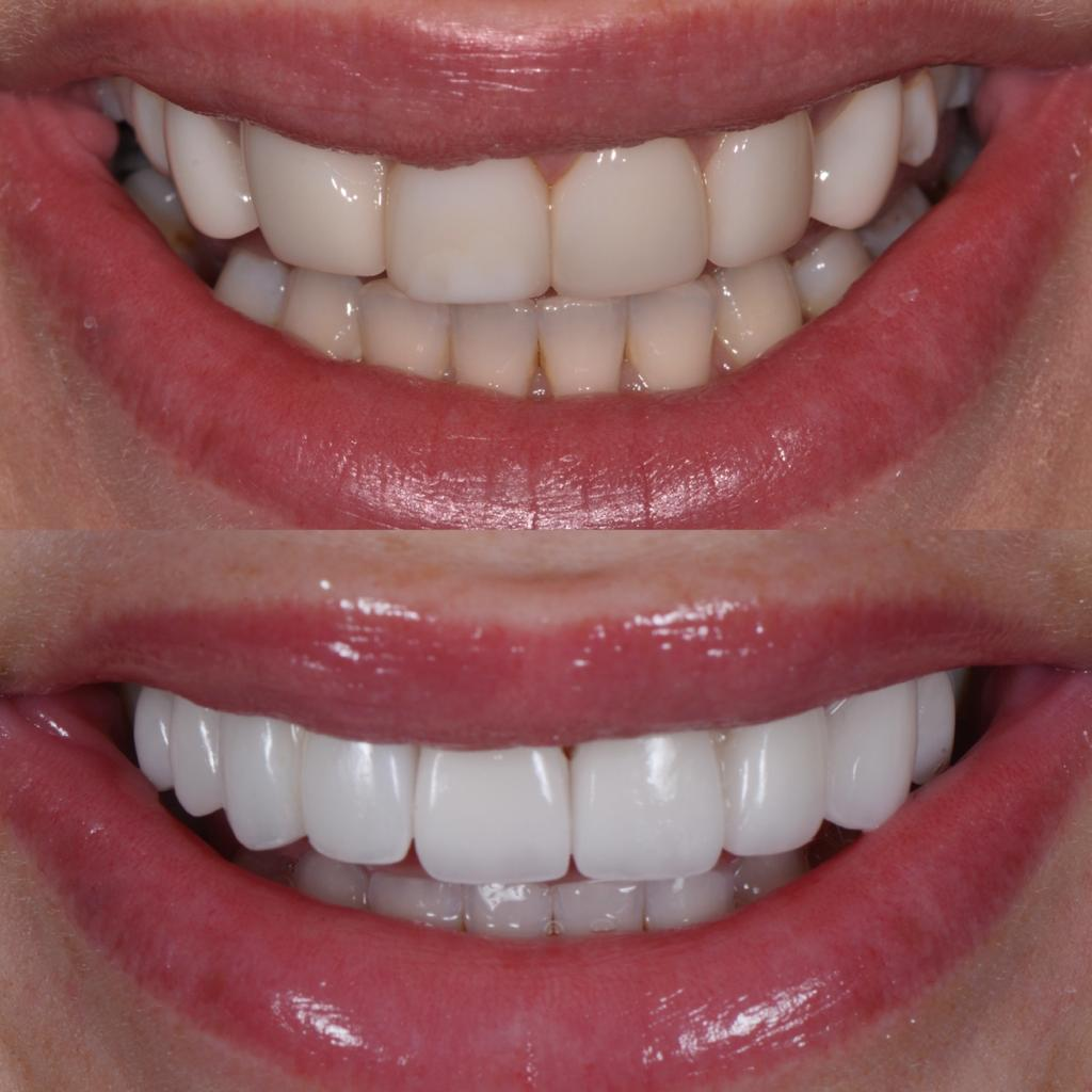 Jessika Power before and after porcelain veneer smile transformation - front teeth view.