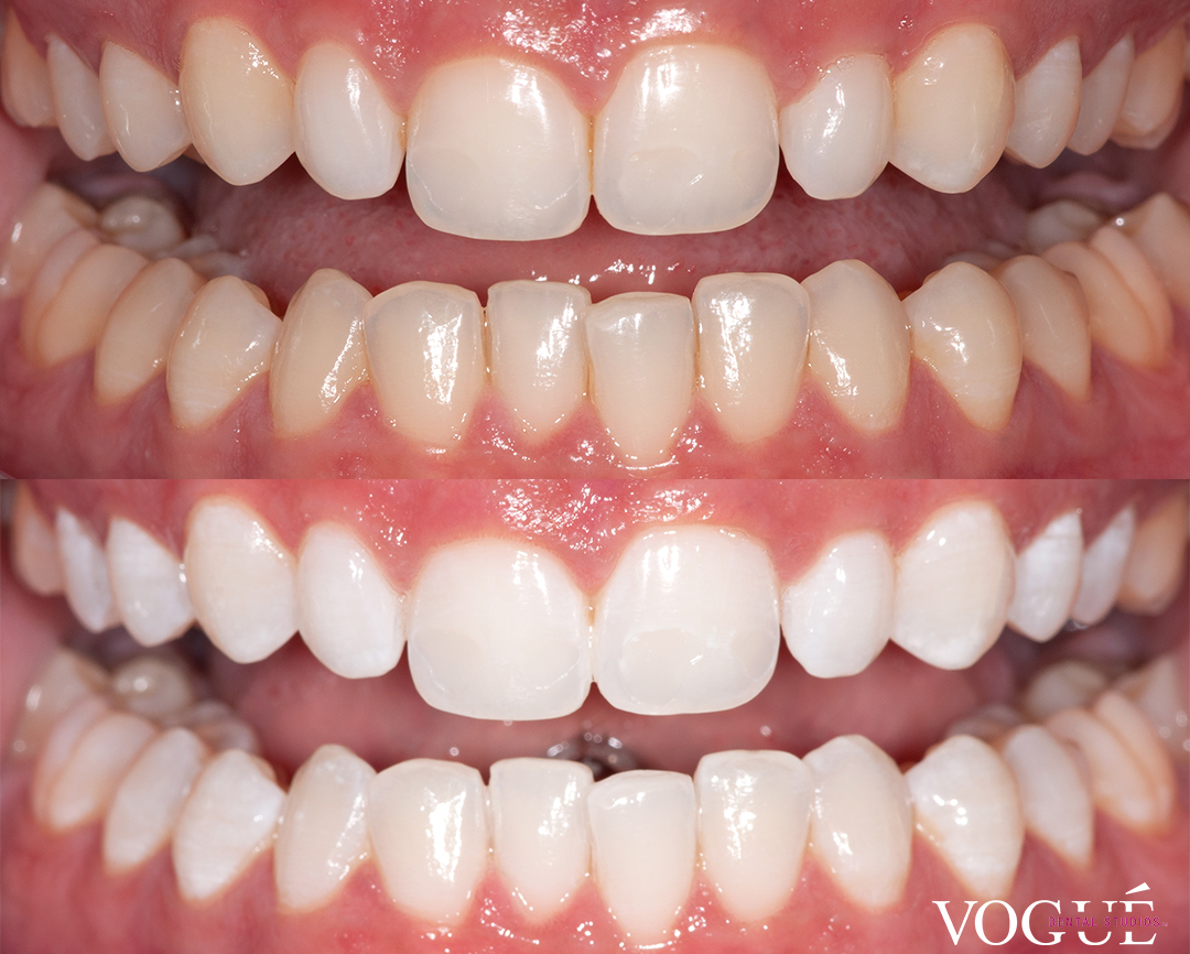 Before and after Philips Zoom professional in-chair teeth whitening at Vogue Dental Studios - Kyara.
