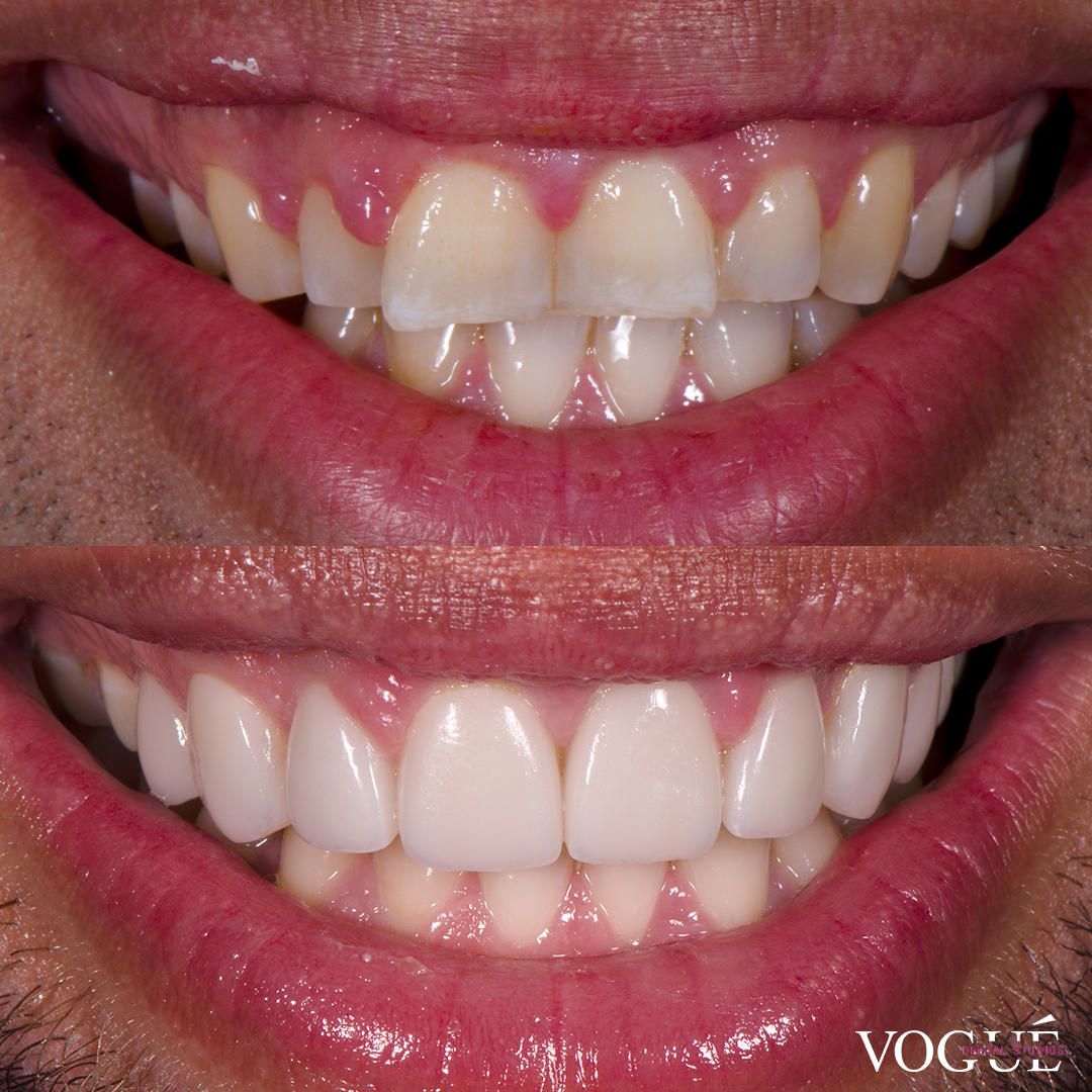 Before and after butterfly teeth with porcelain veneers at Vogue Dental Studios - front teeth view Chris.