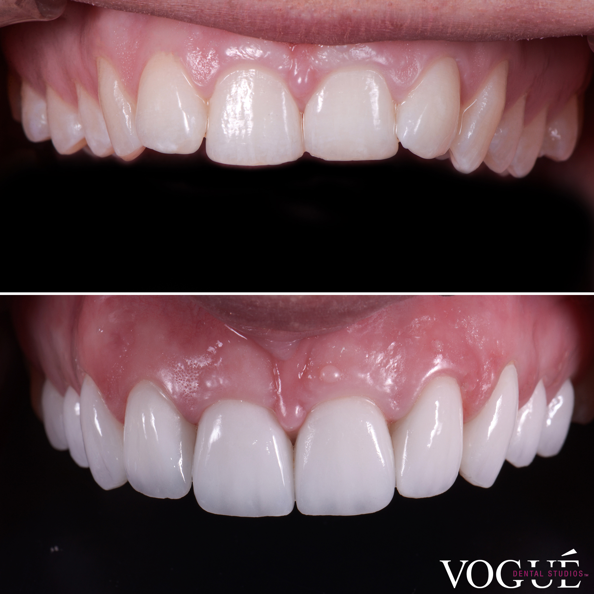 Simone Anderson porcelain veneers smile makeover by Dr Dee.