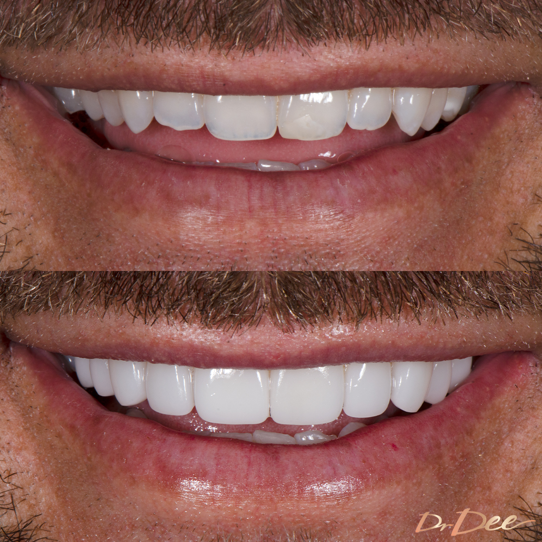 Carlin Sterritt before and after porcelain veneers small teeth, front view.