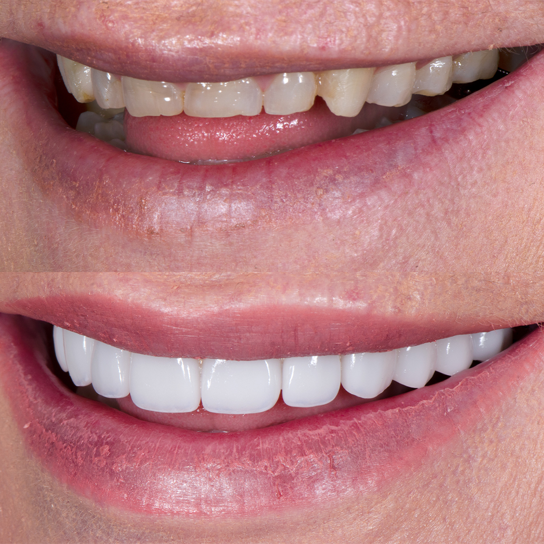 Before and after chipped teeth with porcelain veneers at Vogue Dental Studios - leftteeth view Jennifer.