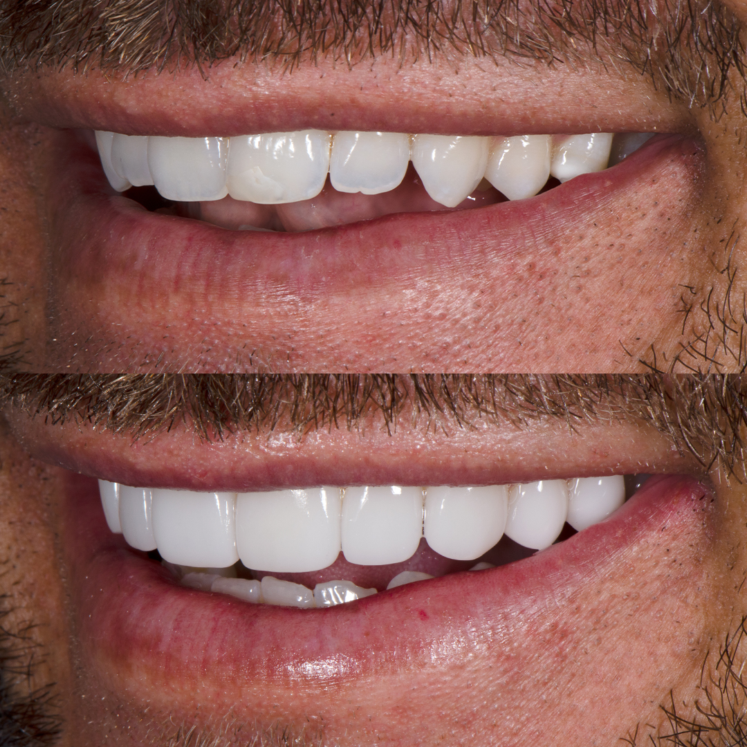 Carlin Sterritt before and after porcelain veneers small teeth, left view.