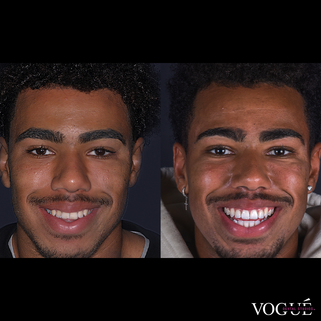 Isaac Invisalign and whitening at Vogue Dental Studios - Face smiling view