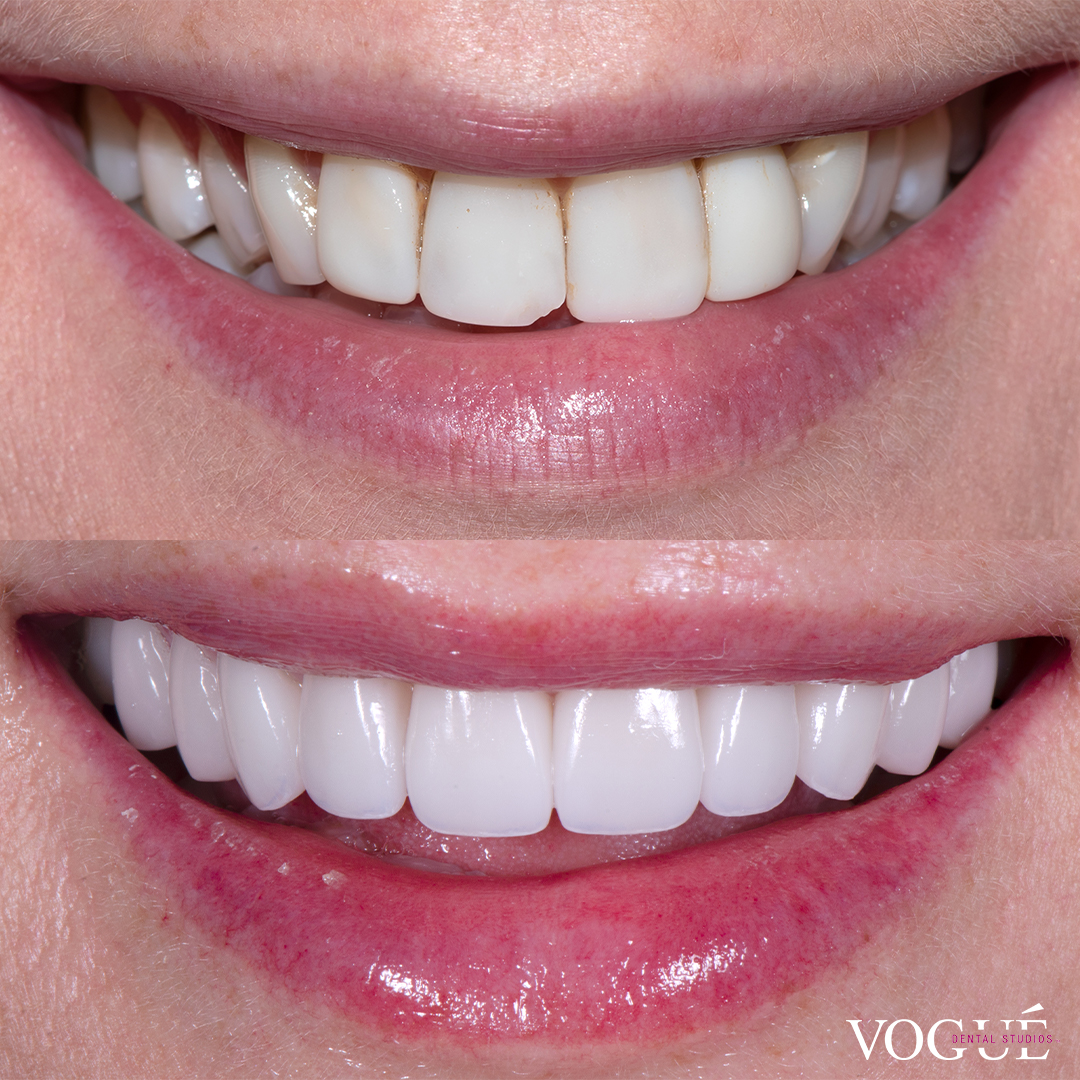 Before and after old composites with porcelain veneers at Vogue Dental Studios - front teeth view Bianca.