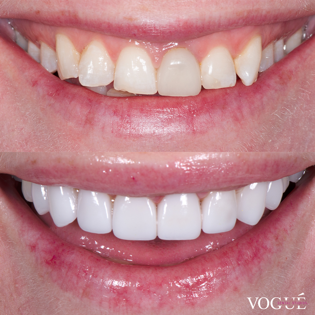 Before and after porcelain veneers at Vogue Dental Studios - front teeth view Melissa.
