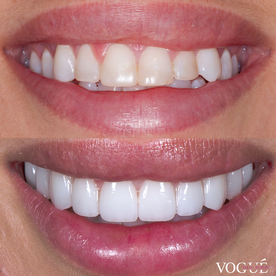 Before and after porcelain veneers at Vogue Dental Studios - Front View Bonnie Anderson Neighbours