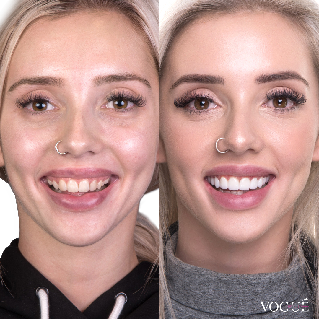 Before and after porcelain veneers smile makeover at Vogue Dental Studios - front face view Erin.