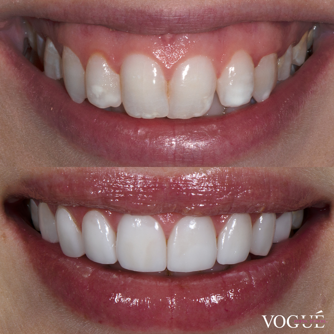Before and after gummy smile with porcelain veneers at Vogue Dental Studios - front teeth view Natasha.