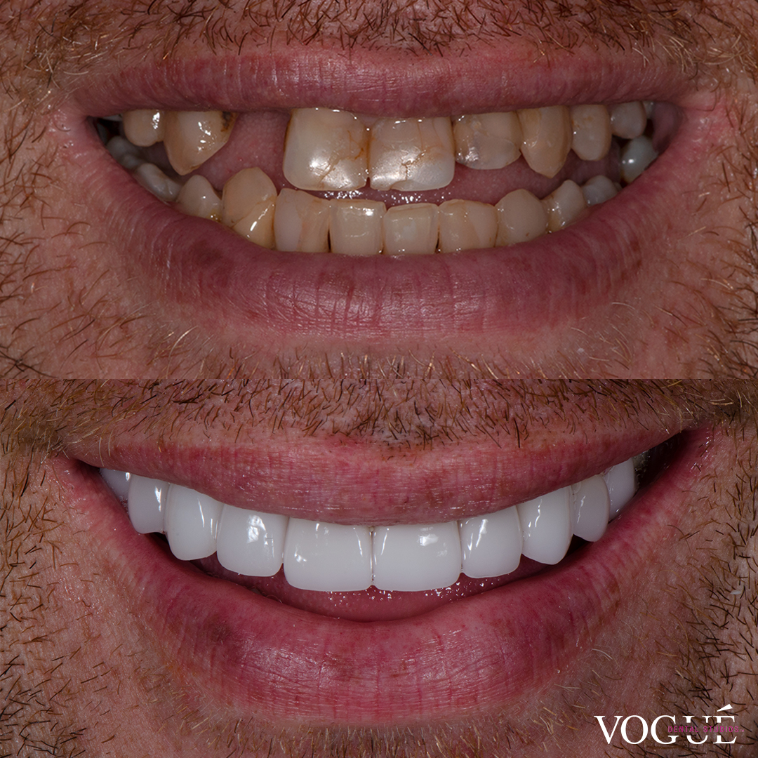 Before and after missing teeth with porcelain veneers at Vogue Dental Studios - front teeth view Con.