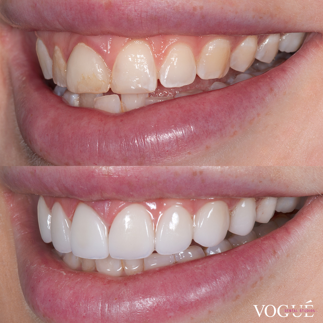 Before and after uneven gums with porcelain veneers at Vogue Dental Studios - left teeth view Bec.