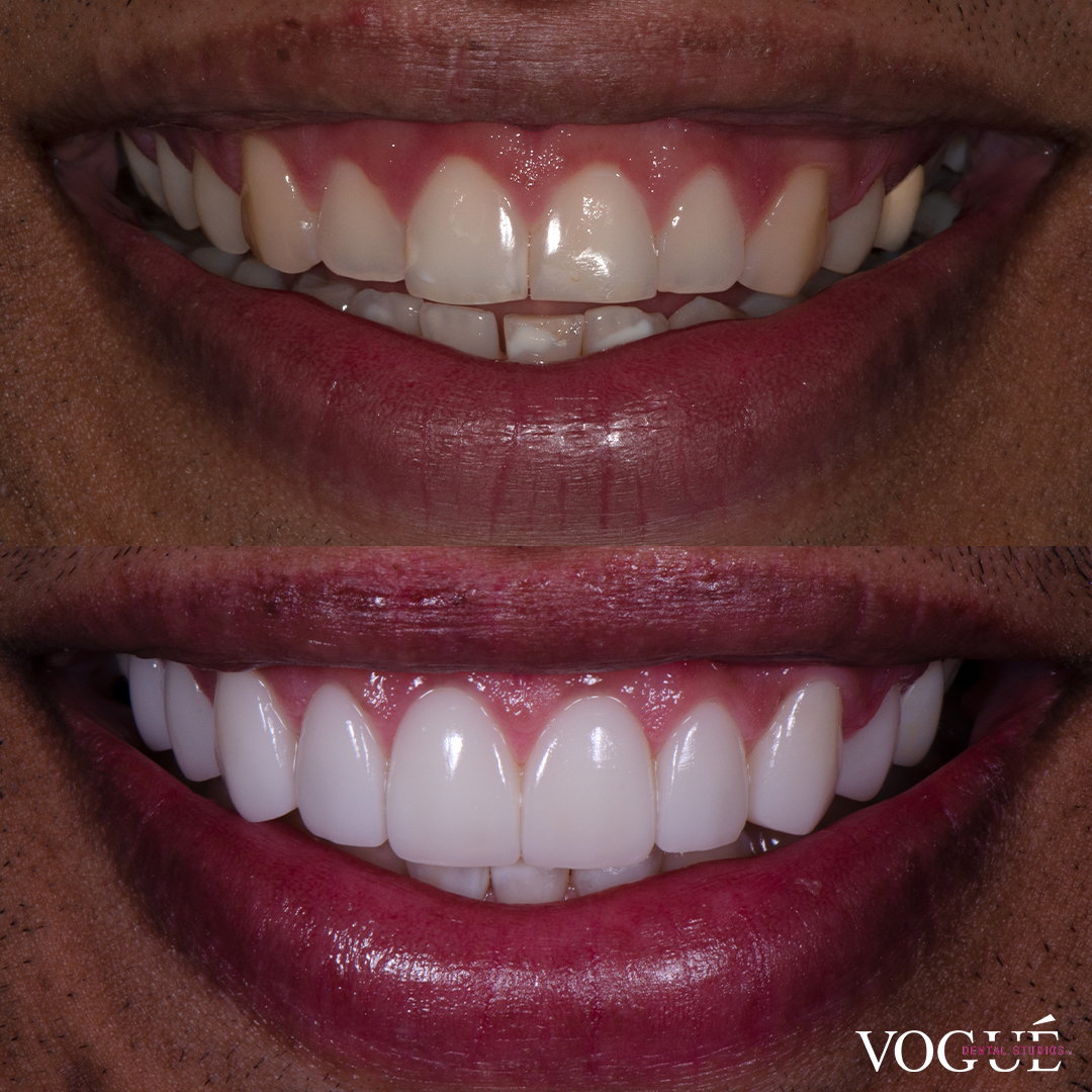 Before and after cementation porcelain veneers at Vogue Dental Studios - front teeth view Jude