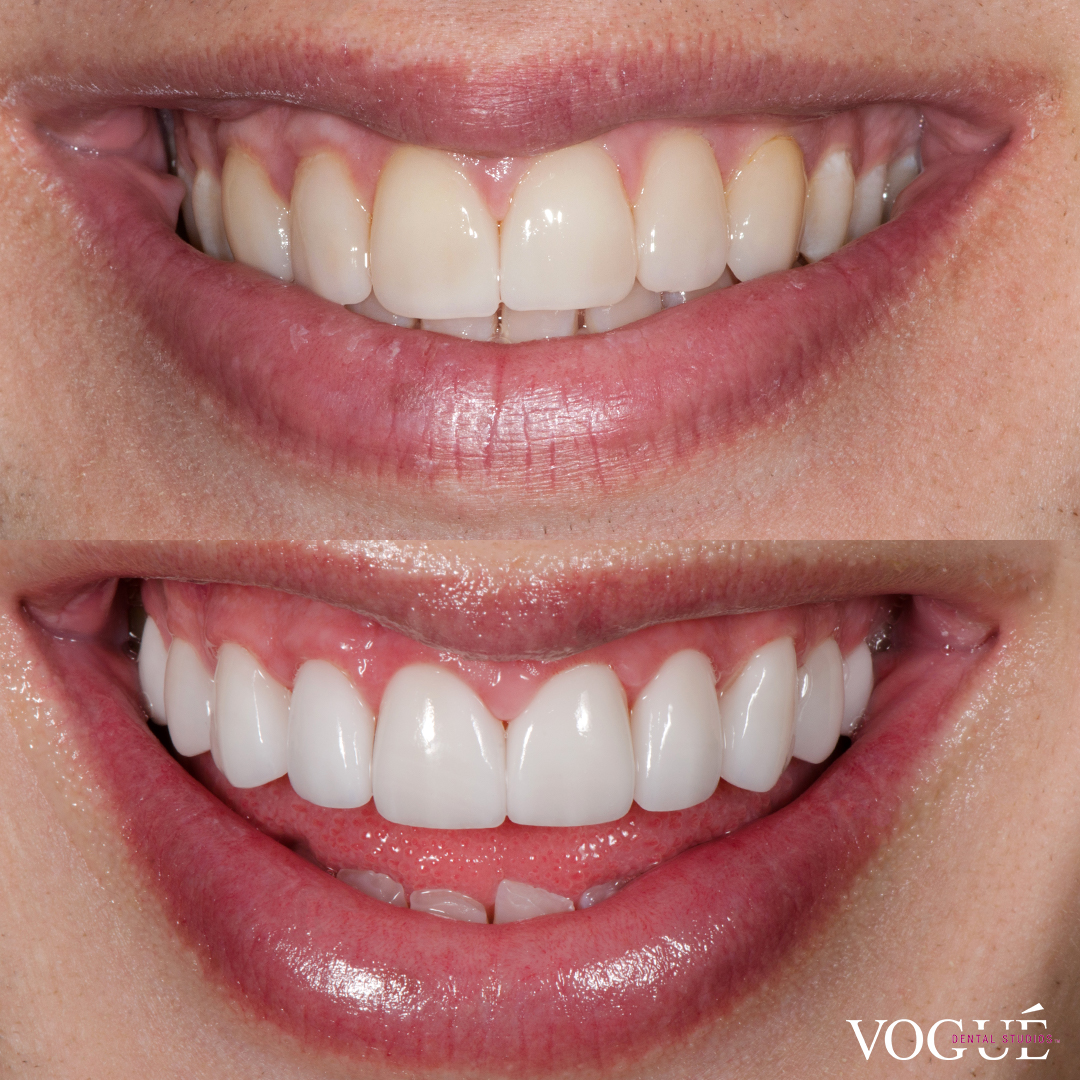 Liam Ferrari before and after porcelain veneers at Vogue Dental Studios.