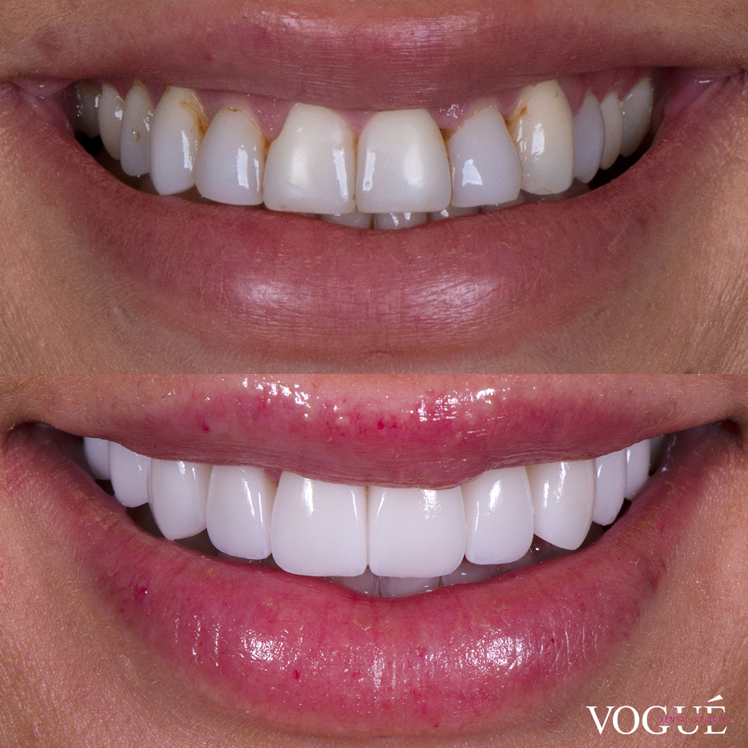 Before and after porcelain veneers at Vogue Dental Studios - Front View Jessica Brody The Bachelor