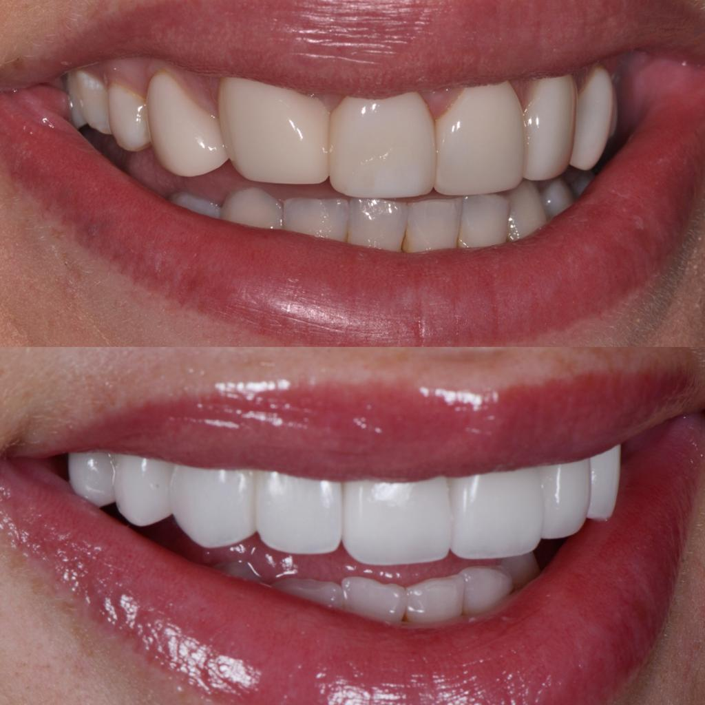 Before and after replacement veneers on Jessika Power at Vogue Dental Stuidos.