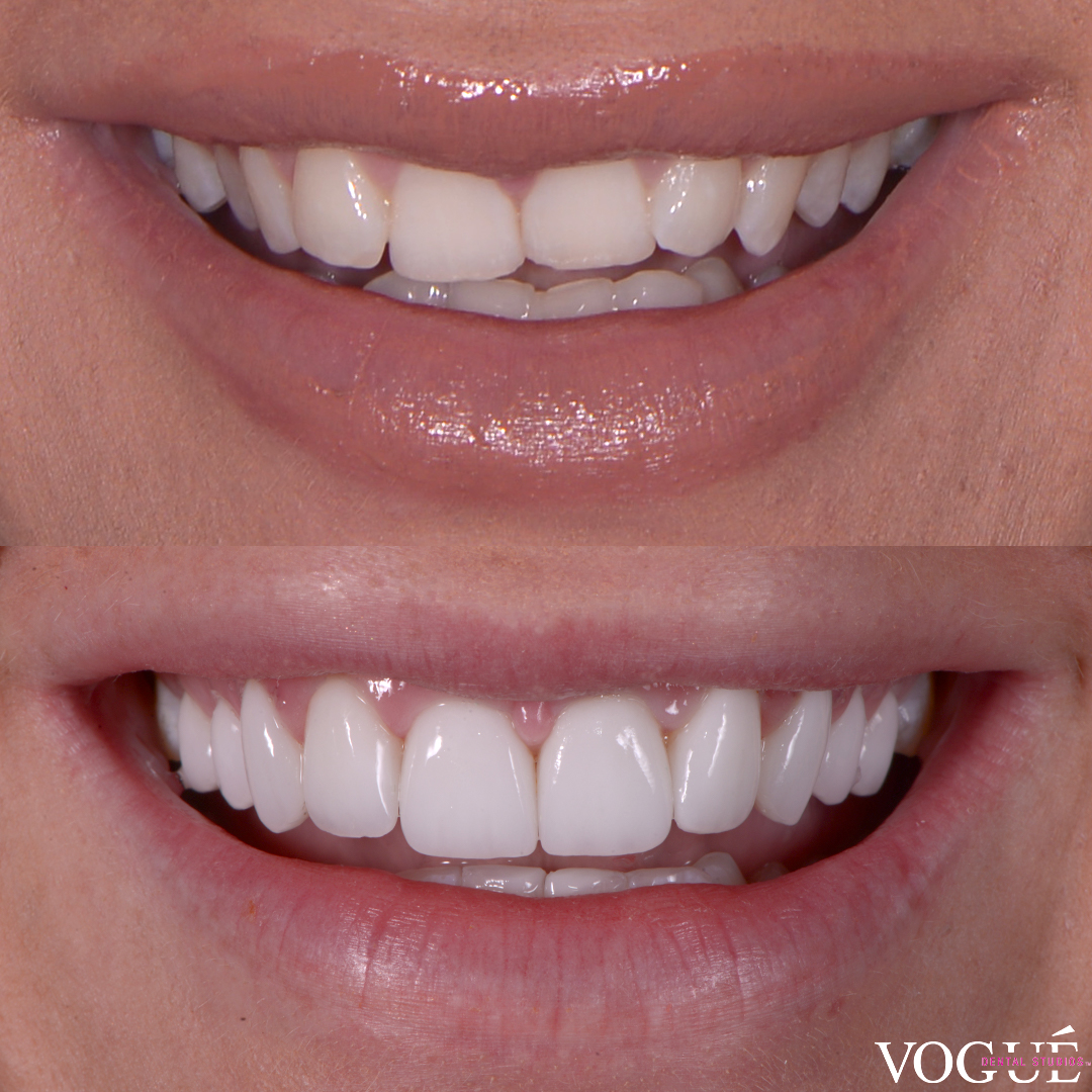 Simone Anderson dental veneers smile transformation with Dr Dee.