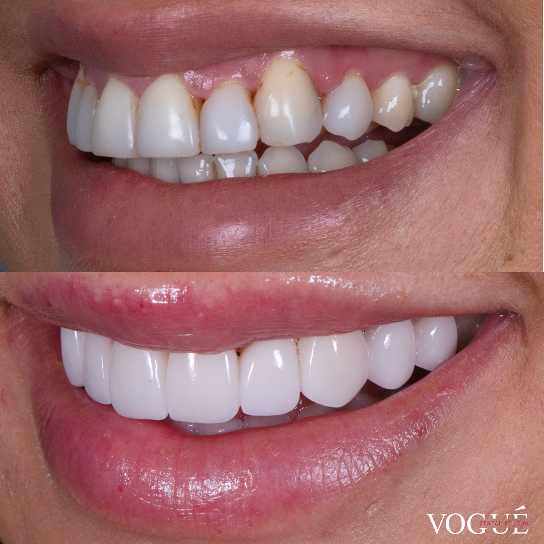 Before and after porcelain veneers at Vogue Dental Studios - Left Side View Jessica Brody The Bachelor