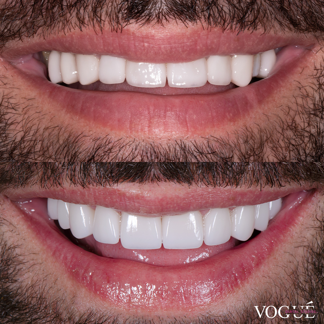 Before and after porcelain veneers smile makeover at Vogue Dental Studios - front teeth view gentleman.