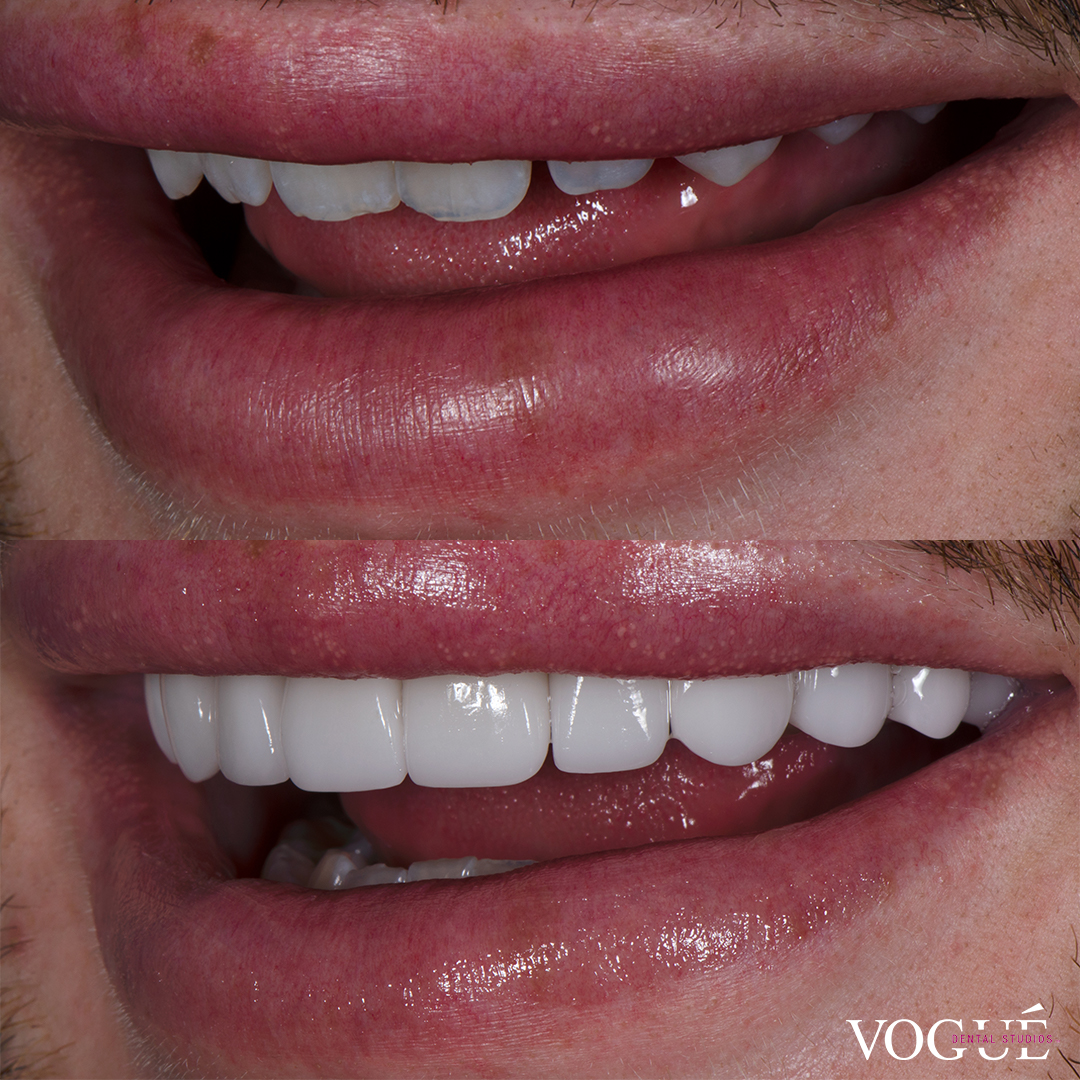 Michael Finch makeup artist before and after porcelain veneers at Vogue Dental Studios left teeth view.