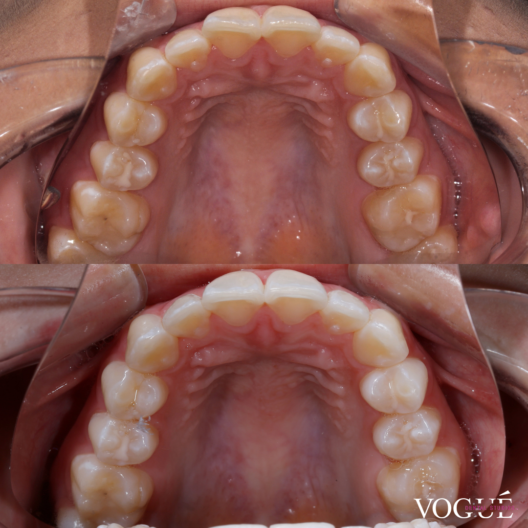 Before and After Invisalign i7 and whitening at Vogue Dental Studios - front teeth view Vee.