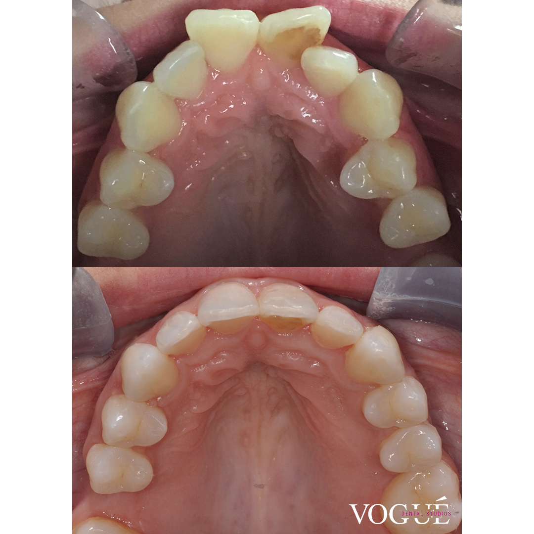 Before and after Invisalign Full at Vogue Dental Studios - Uppers - Sharni