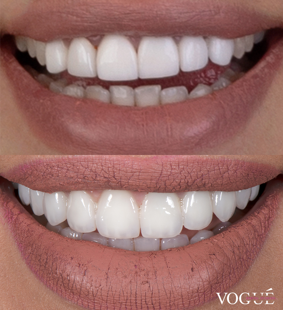 Before and after bulky old veneers replaced by porcelain veneers Vogue Dental Studios - front smile view.