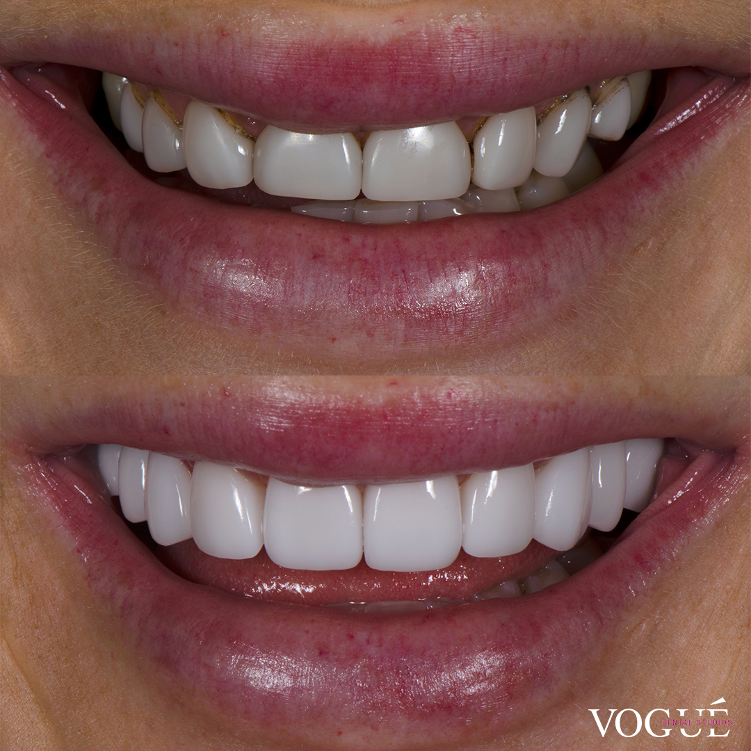 Before and after porcelain veneers smile makeover at Vogue Dental Studios - front teeth view Ines.