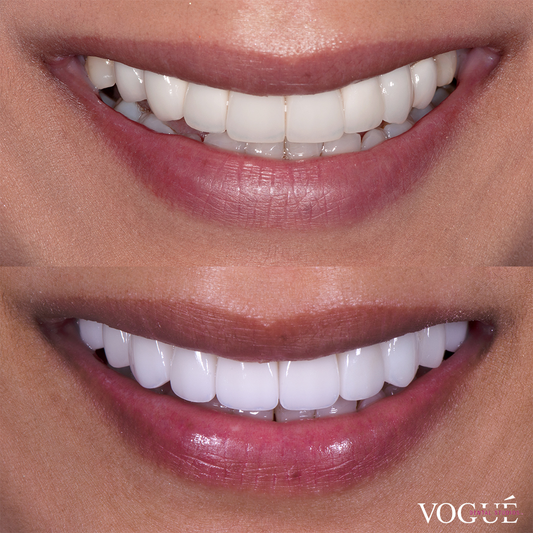 Before and after porcelain veneers at Vogue Dental Studios - front teeth view Ratha.