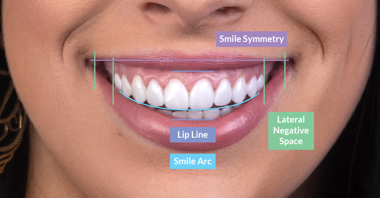 Lip lines and symmetry in smile design on our patient at Vogue Dental Studios.