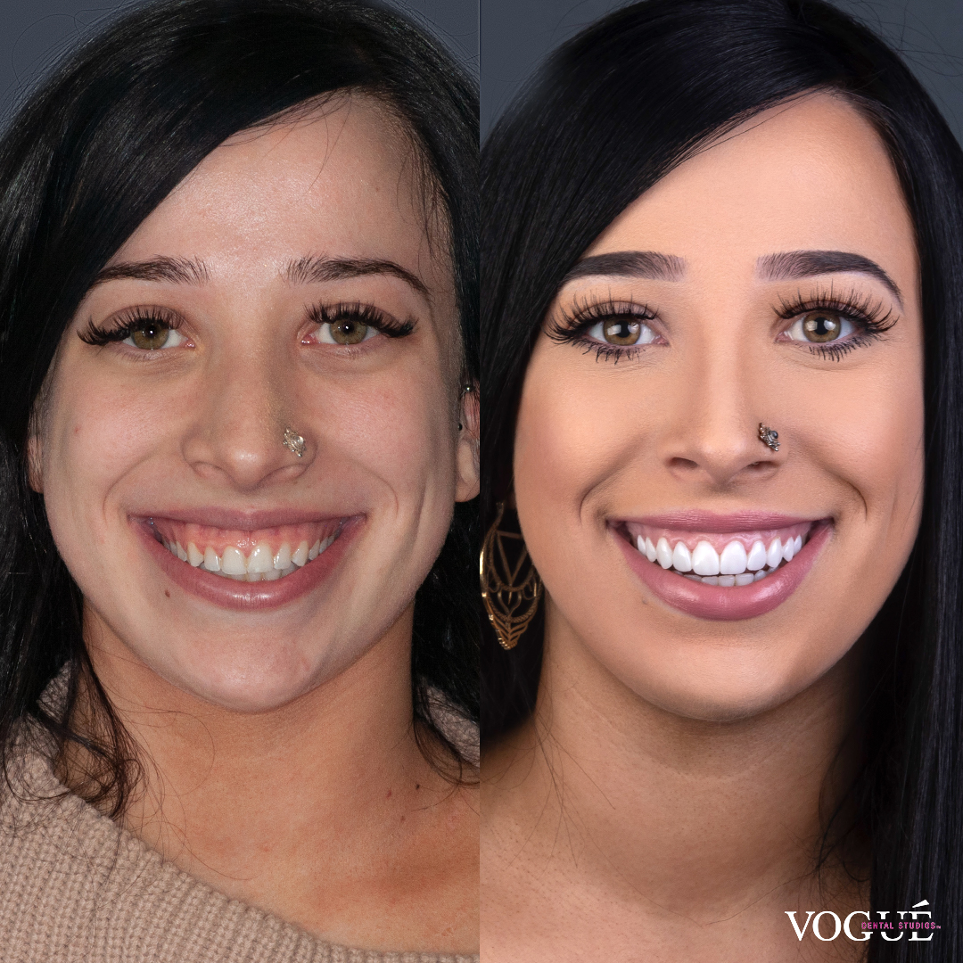 Before and after gummy smile with porcelain veneers at Vogue Dental Studios - font faceview Rachel.