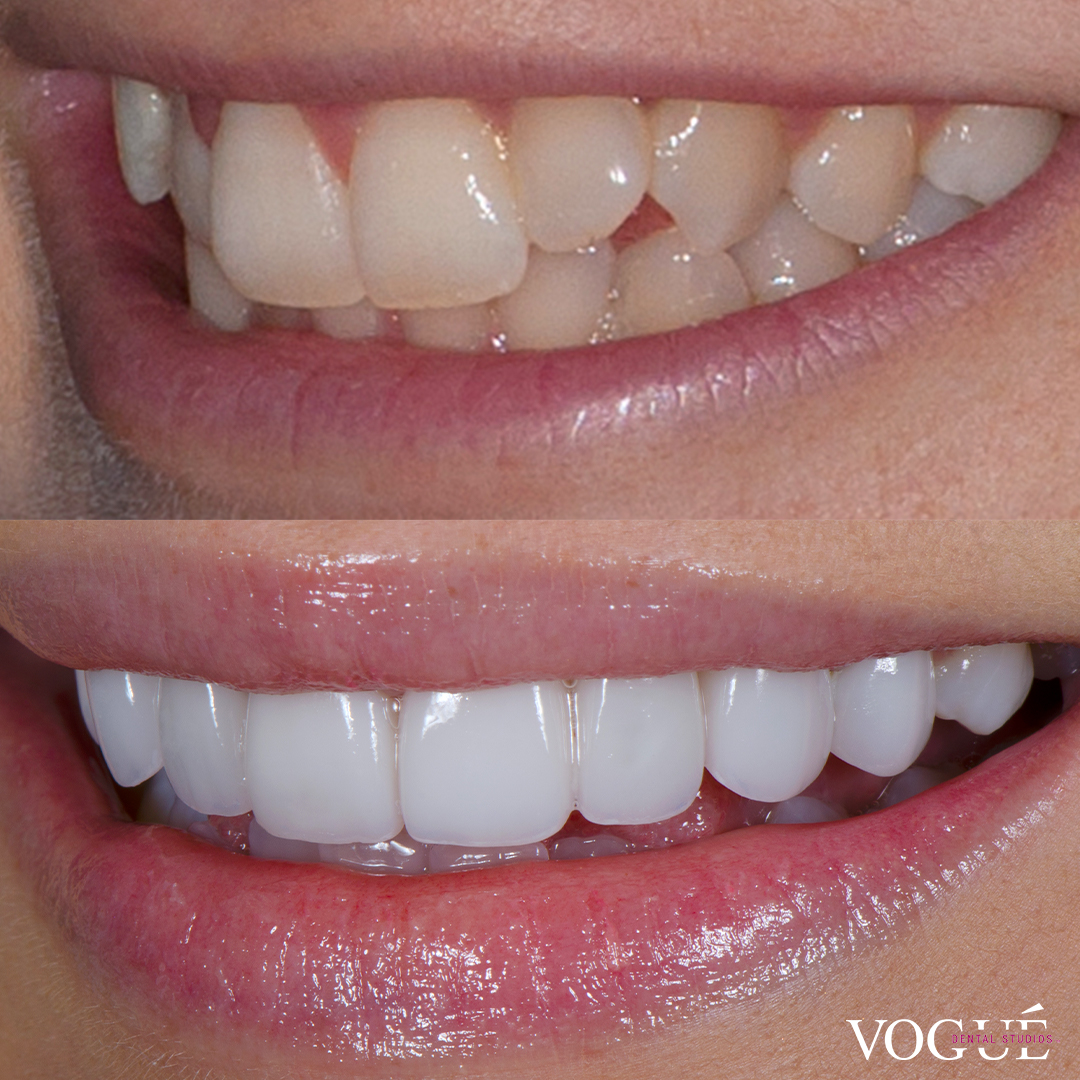 Before and after misaligned teeth with porcelain veneers at Vogue Dental Studios - left teeth view Georgia.