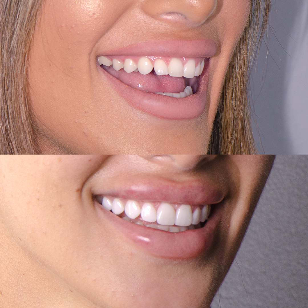 Christina Sikalias before and after porcelain veneers to fix teeth shape at Vogue Dental Studios.