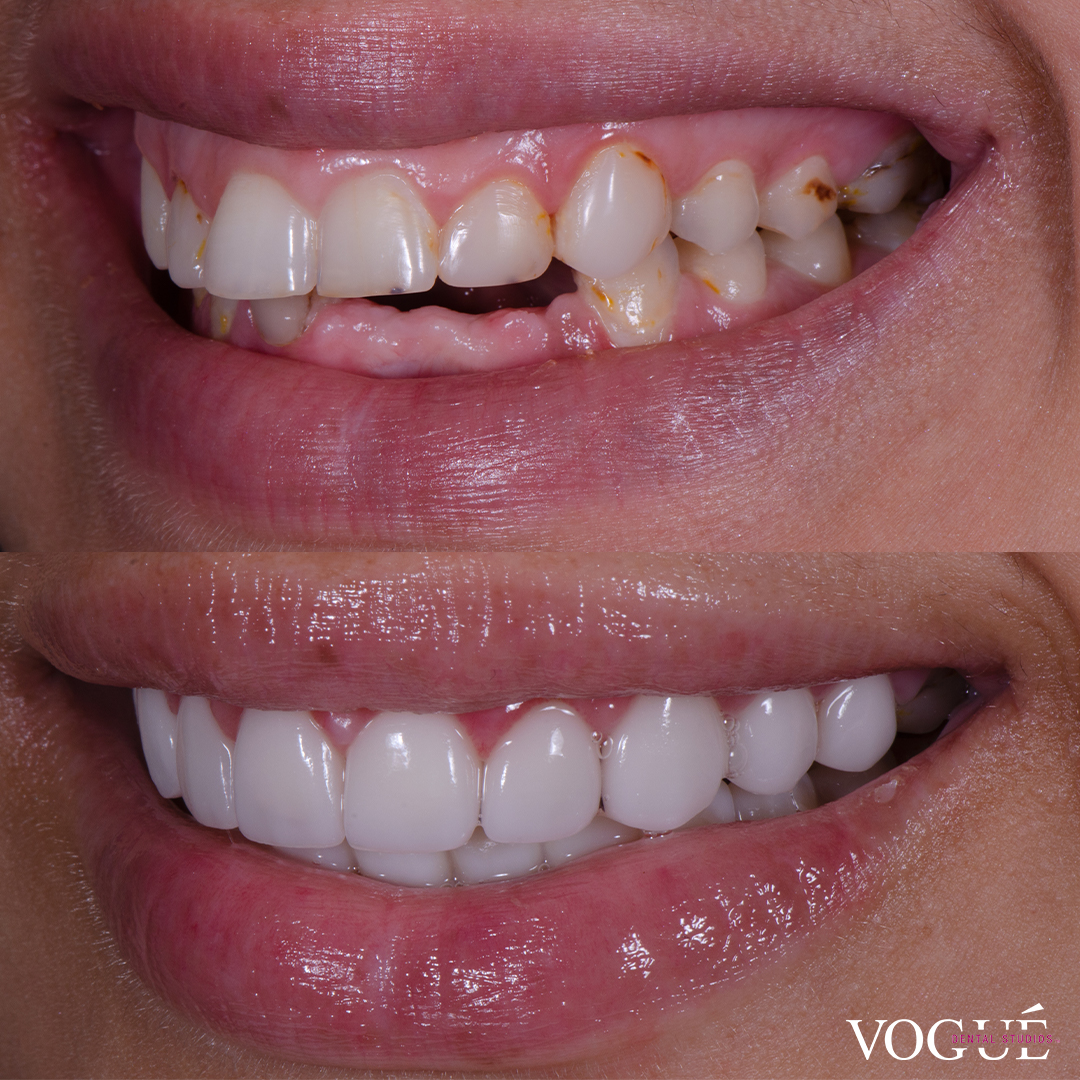 Before and after top and bottom porcelain veneers at Vogue Dental Studios - left teeth view Kara.