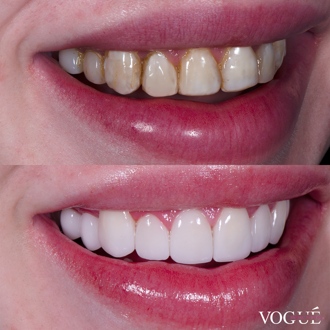 Before and after old composite veneers with porcelain veneers at Vogue Dental Studios - right teeth view Jack.