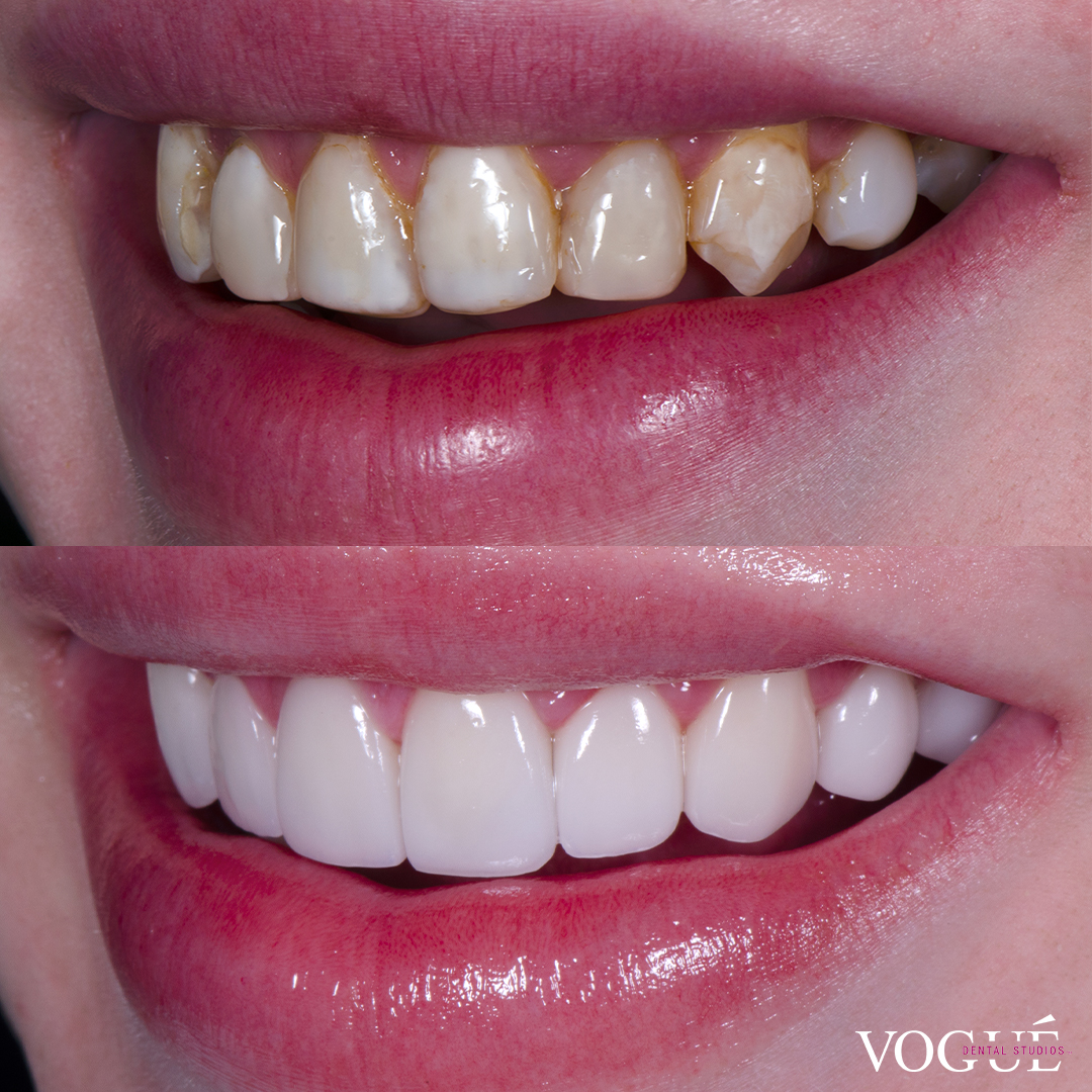Before and after old composite veneers with porcelain veneers at Vogue Dental Studios - left teeth view Jack.