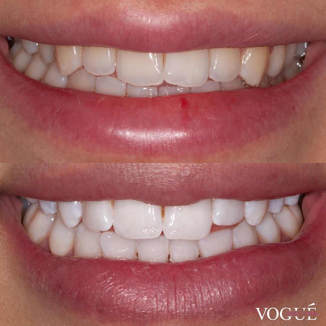 Before and after in-chair teeth whitening at Vogue Dental Studios - front teeth view Olivia.