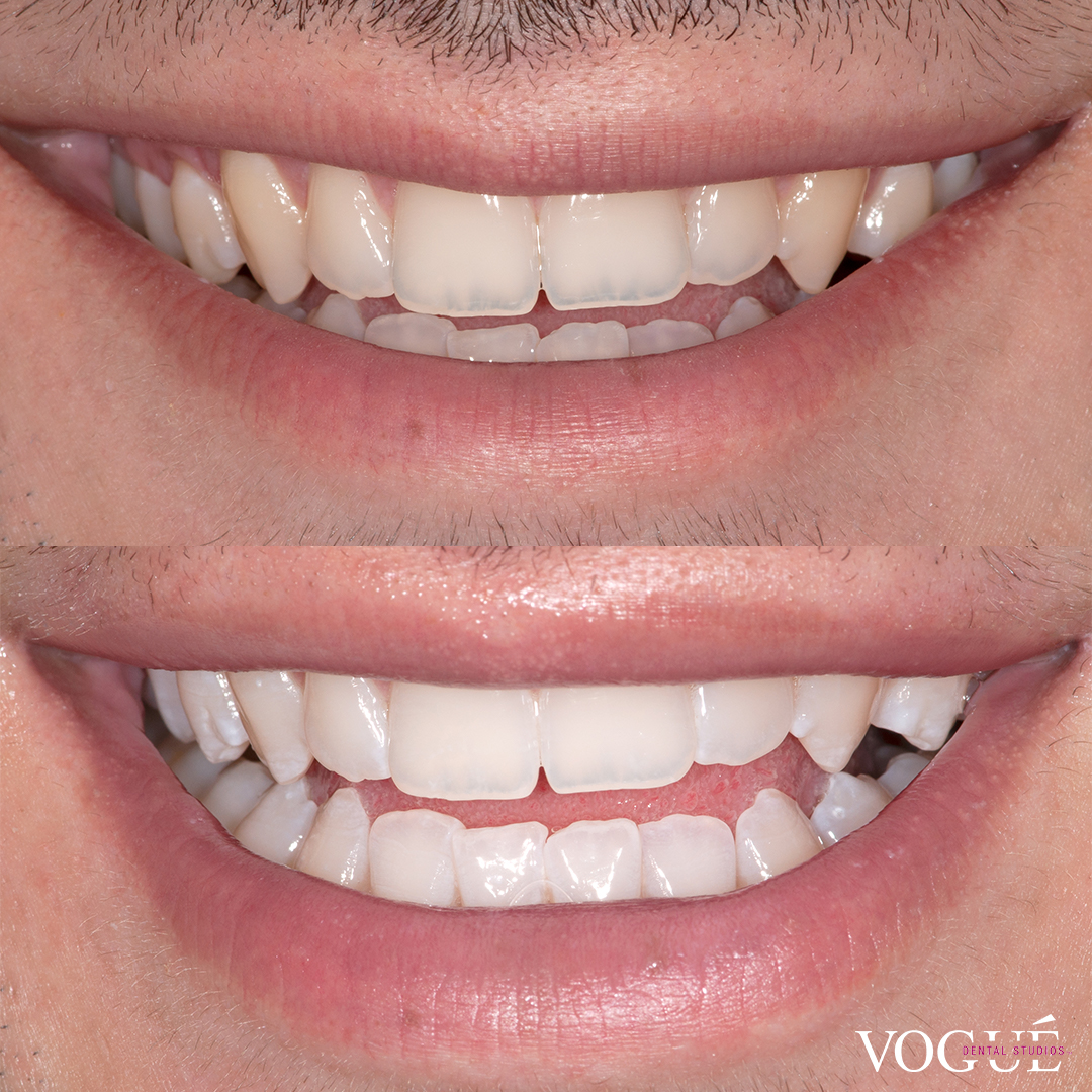 Before and after in-chair teeth whitening at Vogue Dental Studios - front teeth view Guy.