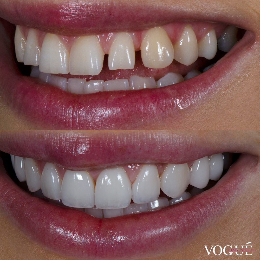 Before and after square teeth with porcelain veneers at Vogue Dental Studios - left teeth view Renee.