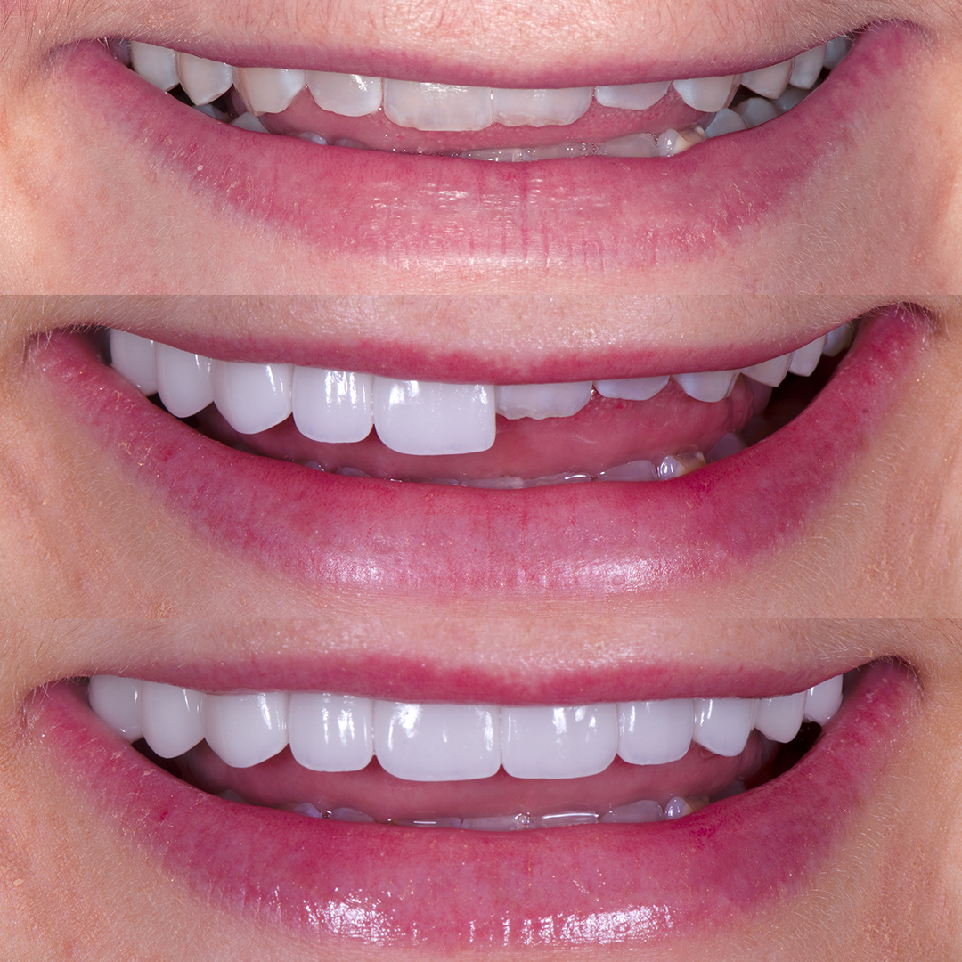 Before and after small teeth with porcelain veneers at Vogue Dental Studios - front teeth view Court.
