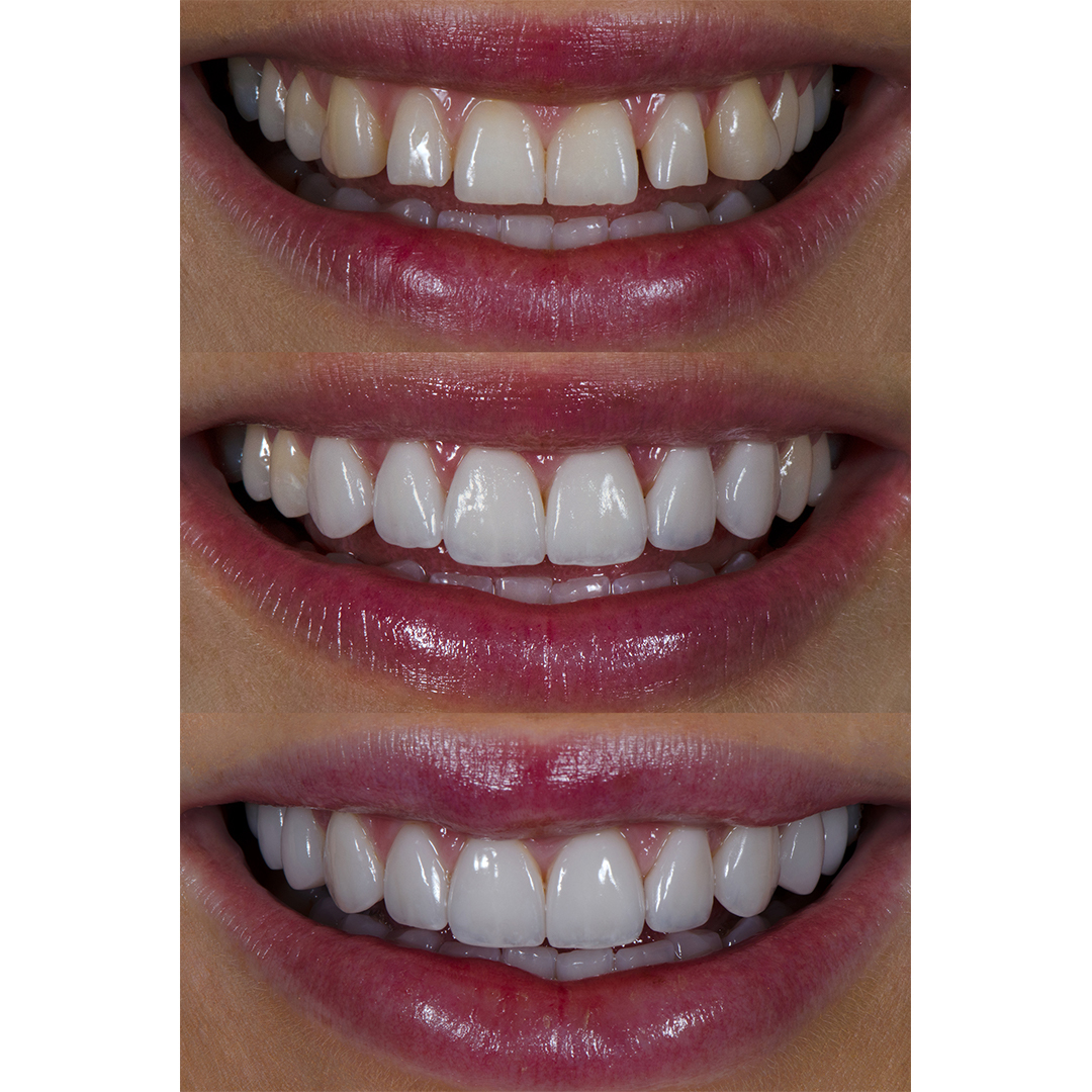 Renee Stewart from Christchurch before and after six, and after ten dental veneers at Vogue Dental Studios.