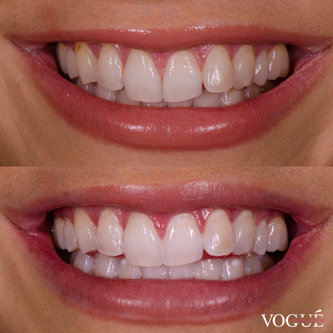 Before and after in-chair teeth whitening at Vogue Dental Studios - front teeth view Anna.