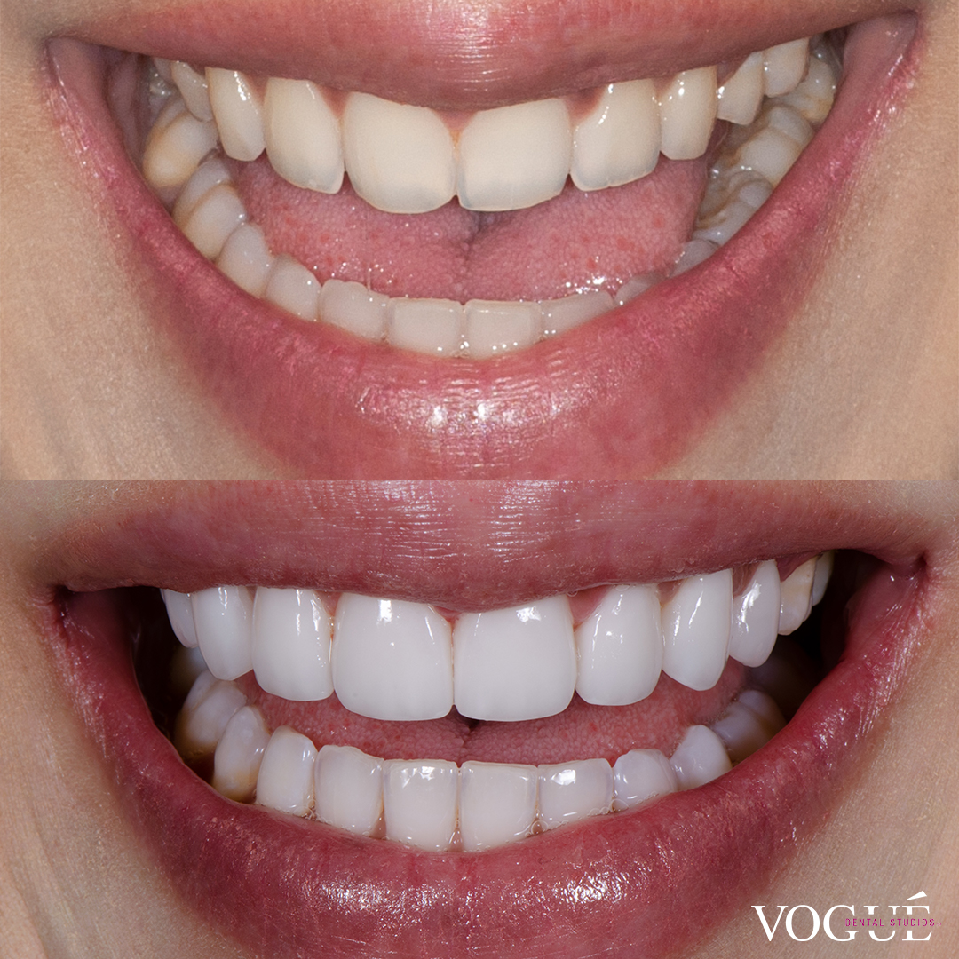 Before and after narrow smile with porcelain veneers at Vogue Dental Studios - front teeth view Nada.