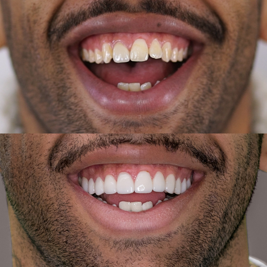 Josh Addo Carr teeth porcelain veneer smile makeover transformation by Dr Dee.